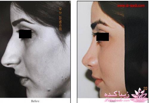 هزینه عمل بینی دکتر فرزان رضایی