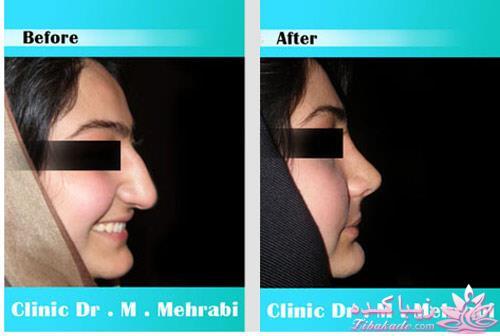 هزینه جراحی بینی دکتر لقمانی