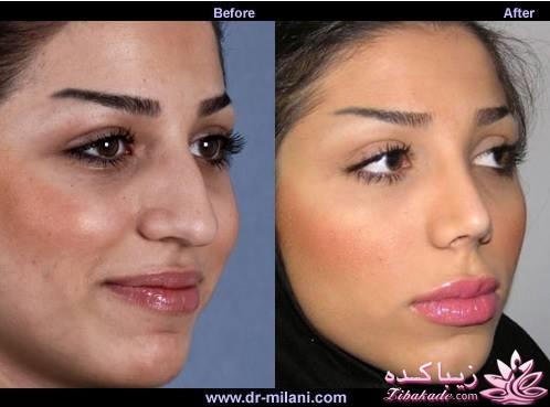 هزینه جراحی بینی دکتر علی زینلی