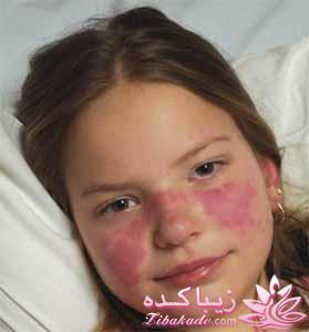 سوژه شدن بیماری سلنا گومز آخه بیماری لوپوس بیماری هستش