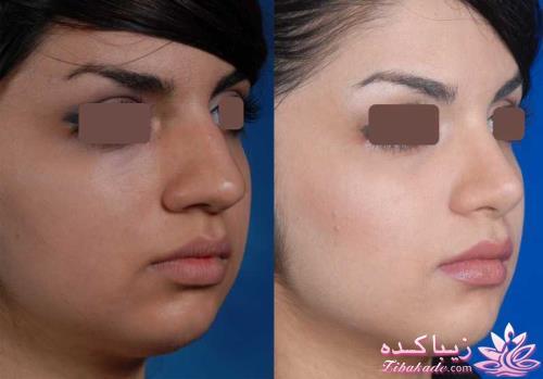دکتر غیاثی جراح بینی