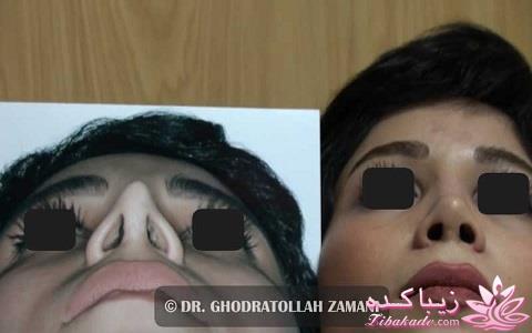 هزینه جراحی بینی دکتر آبرومند